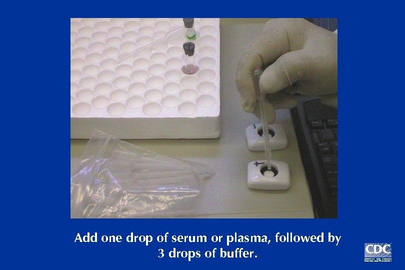 Add one drop of serum or plasma, followed by 3 drops of buffer.