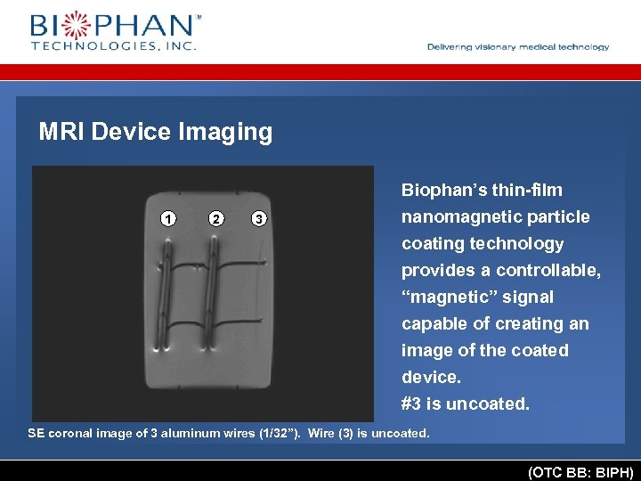 MRI Device Imaging 1 2 3 Biophan's thin-film nanomagnetic particle coating technology provides a
