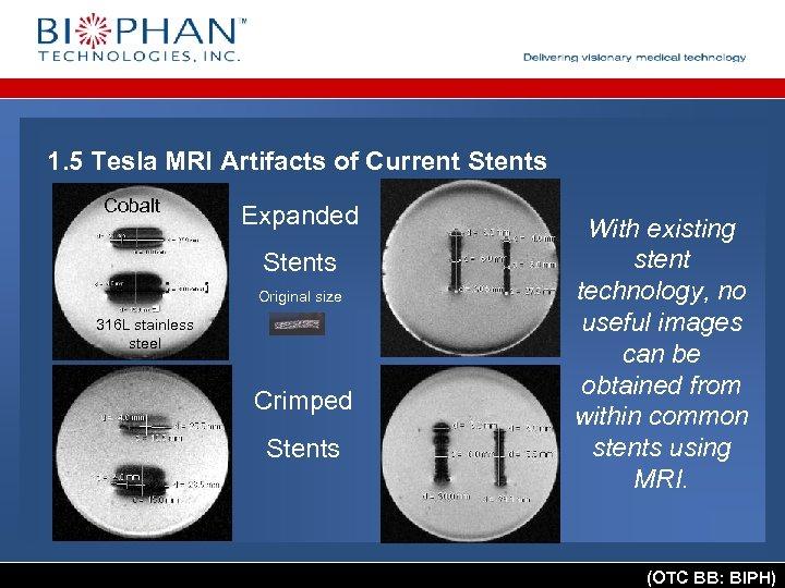 1. 5 Tesla MRI Artifacts of Current Stents Cobalt Expanded Stents Original size 316