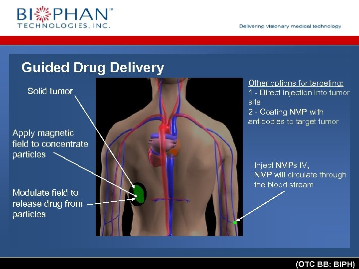 Guided Drug Delivery Solid tumor Other options for targeting: 1 - Direct injection into