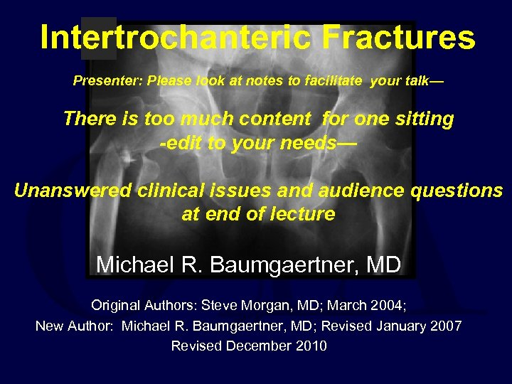 Intertrochanteric Fractures Presenter: Please look at notes to facilitate your talk— There is too