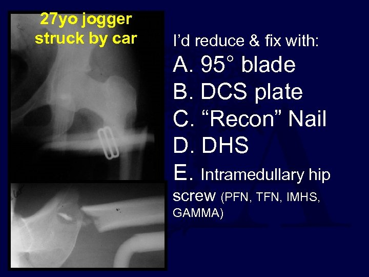 27 yo jogger struck by car I'd reduce & fix with: A. 95° blade