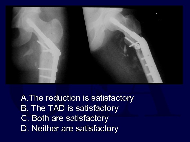 A. The reduction is satisfactory B. The TAD is satisfactory C. Both are satisfactory