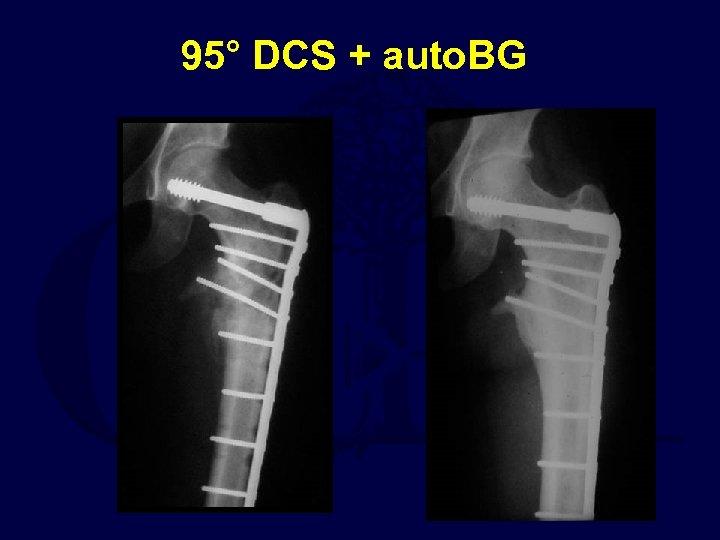 95° DCS + auto. BG