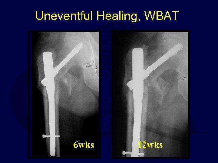 Uneventful Healing, WBAT 6 wks 12 wks
