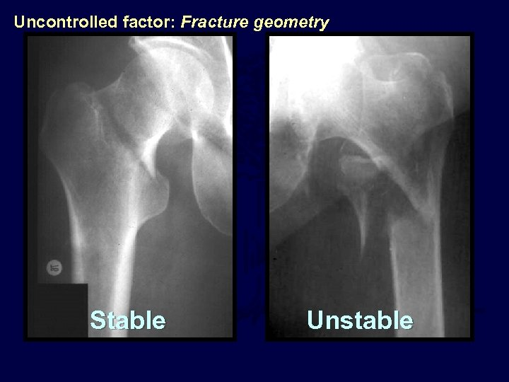 Uncontrolled factor: Fracture geometry Stable Unstable