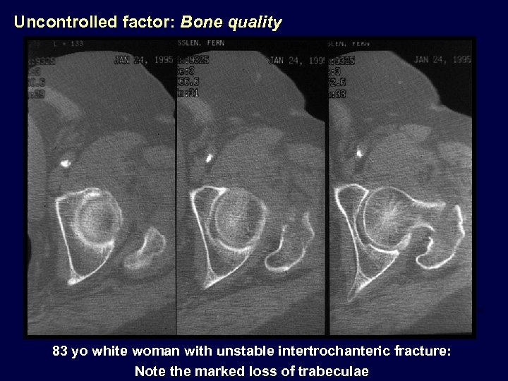 Uncontrolled factor: Bone quality 83 yo white woman with unstable intertrochanteric fracture: Note the