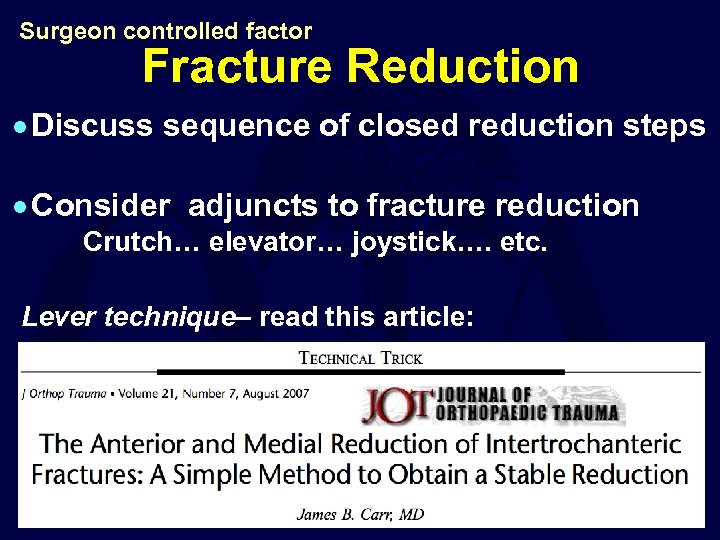 Surgeon controlled factor Fracture Reduction · Discuss sequence of closed reduction steps · Consider