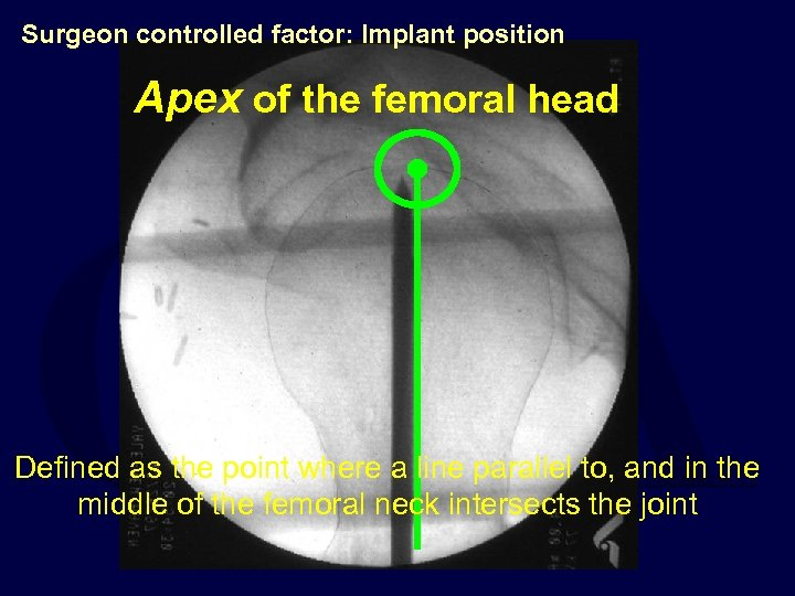 Surgeon controlled factor: Implant position Apex of the femoral head Defined as the point