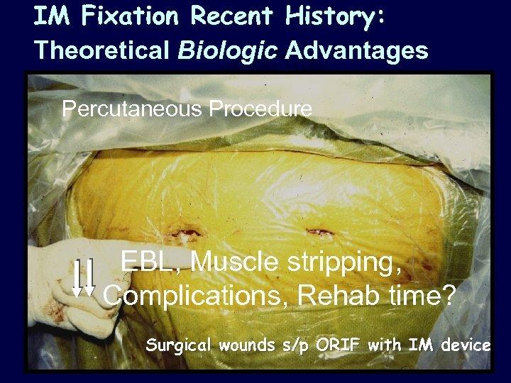 IM Fixation Recent History: Theoretical Biologic Advantages Percutaneous Procedure EBL, Muscle stripping, Complications, Rehab