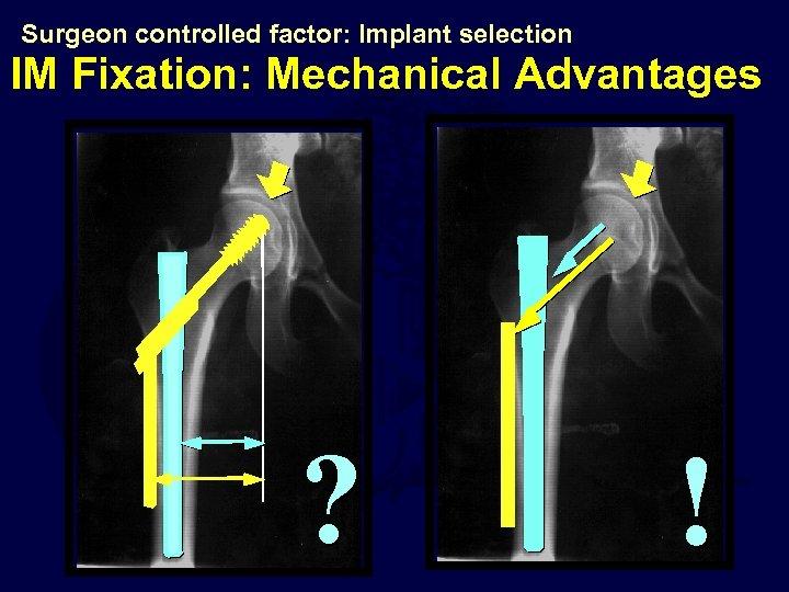 Surgeon controlled factor: Implant selection IM Fixation: Mechanical Advantages ? !