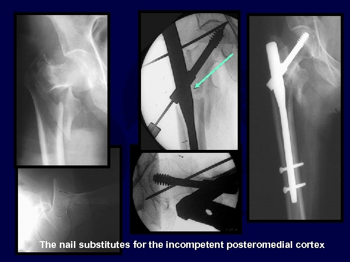 The nail substitutes for the incompetent posteromedial cortex