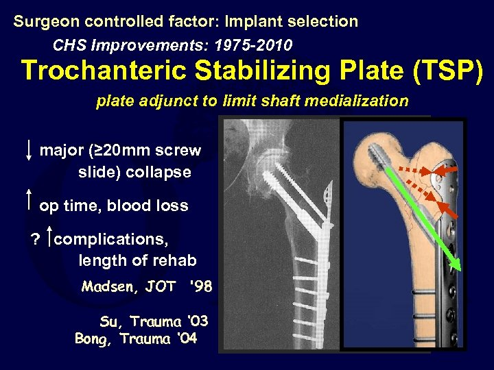 Surgeon controlled factor: Implant selection CHS Improvements: 1975 -2010 Trochanteric Stabilizing Plate (TSP) plate