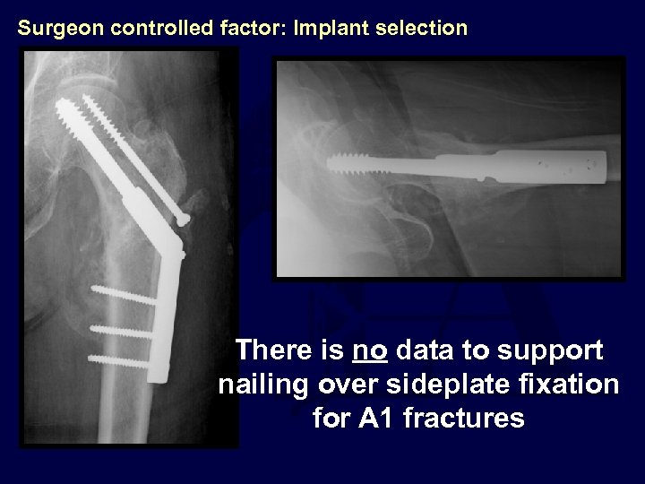 Surgeon controlled factor: Implant selection There is no data to support nailing over sideplate