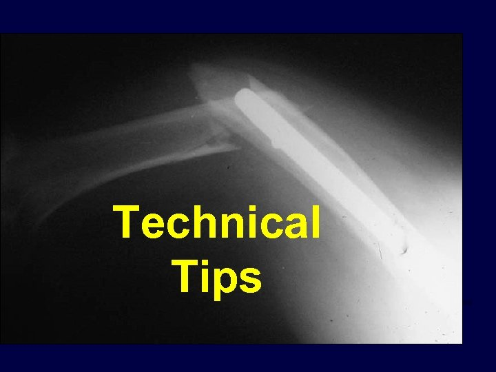 Technical Tips