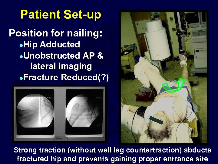 Patient Set-up Position for nailing: Hip Adducted l. Unobstructed AP & lateral imaging l.