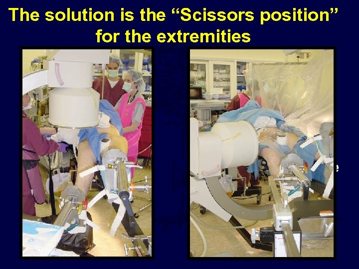 """The solution is the """"Scissors position"""" for the extremities • Both feet in txn"""