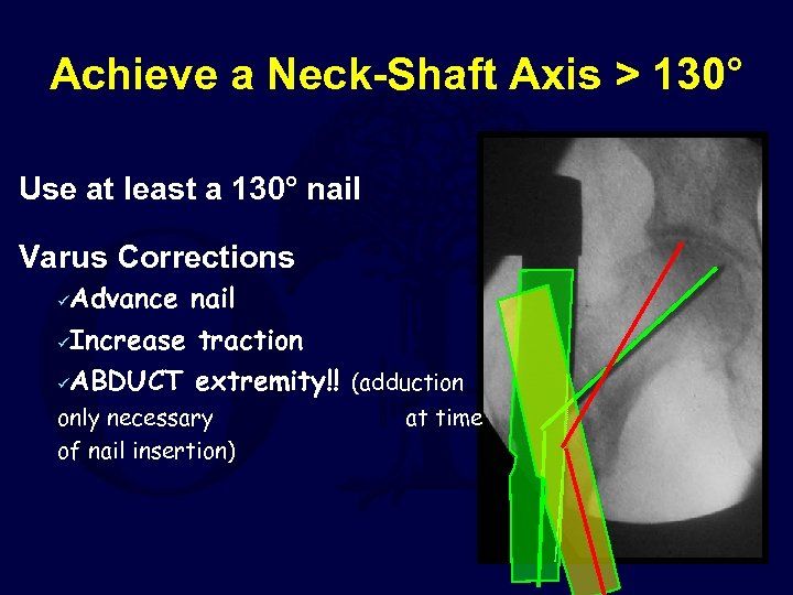 Achieve a Neck-Shaft Axis > 130° Use at least a 130° nail Varus Corrections