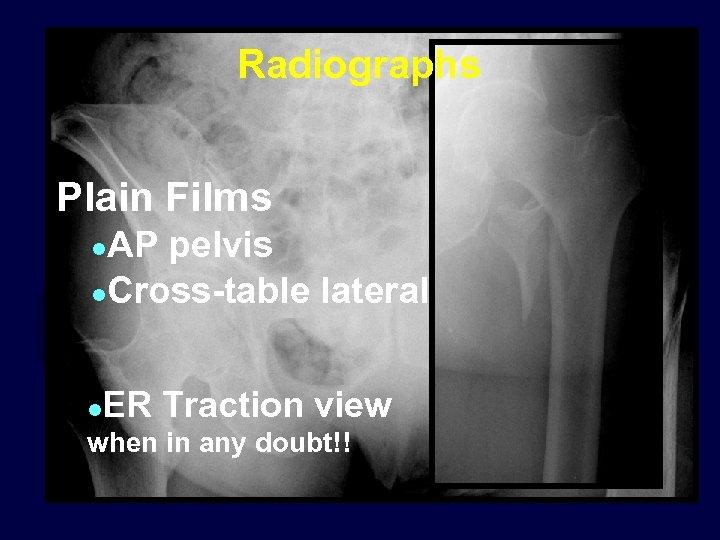 Radiographs Plain Films AP pelvis l. Cross-table lateral l l ER Traction view when