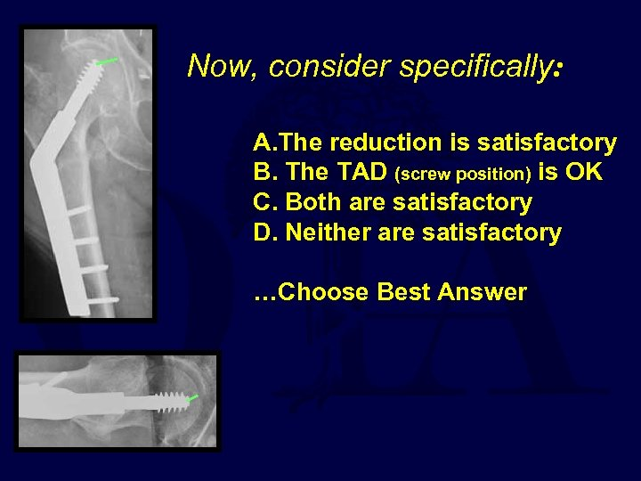 Now, consider specifically: A. The reduction is satisfactory B. The TAD (screw position) is