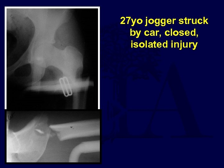 27 yo jogger struck by car, closed, isolated injury