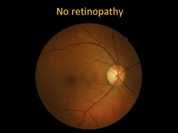 No retinopathy