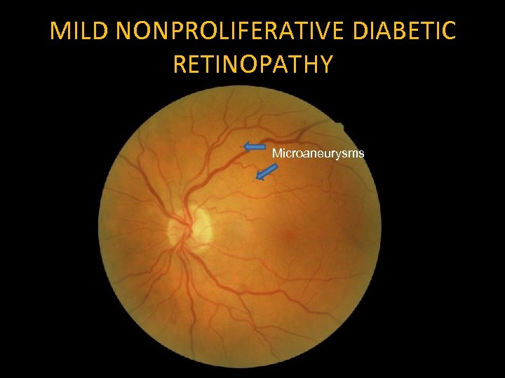 MILD NONPROLIFERATIVE DIABETIC RETINOPATHY Microaneurysms