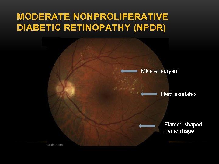 MODERATE NONPROLIFERATIVE DIABETIC RETINOPATHY (NPDR) Microaneurysm Hard exudates Flamed shaped hemorrhage