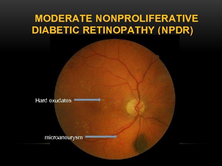MODERATE NONPROLIFERATIVE DIABETIC RETINOPATHY (NPDR) Hard exudates microaneurysm