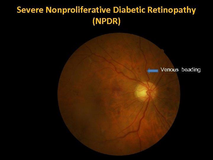Severe Nonproliferative Diabetic Retinopathy (NPDR) Venous beading