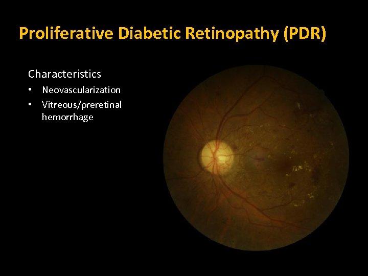 Proliferative Diabetic Retinopathy (PDR) Characteristics • Neovascularization • Vitreous/preretinal hemorrhage