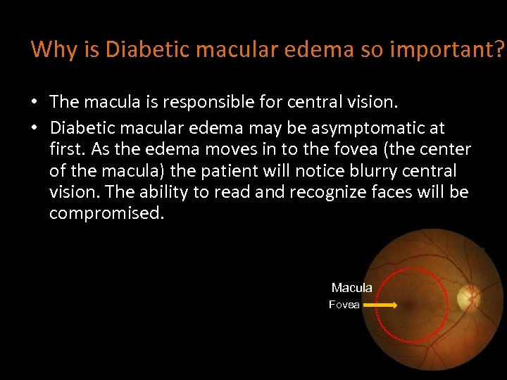 Why is Diabetic macular edema so important? • The macula is responsible for central