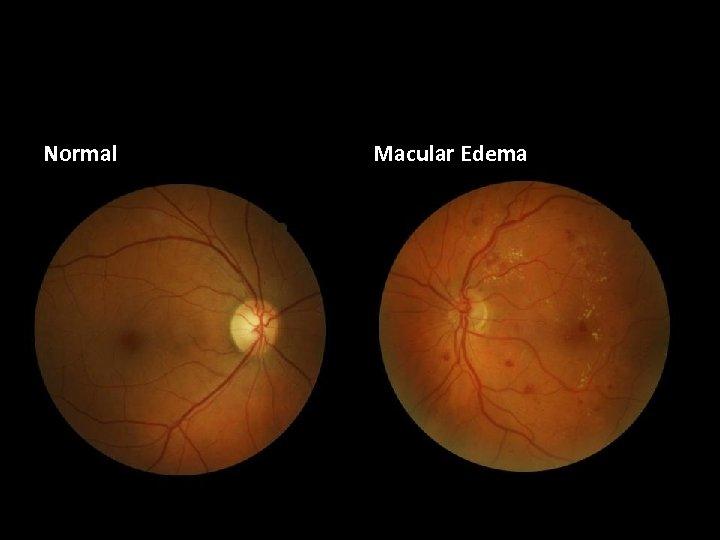 Normal Macular Edema