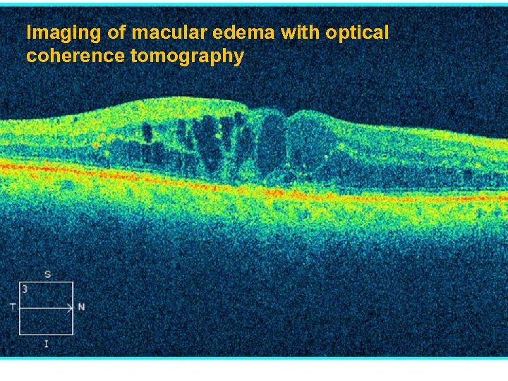 Imaging of macular edema with optical coherence tomography