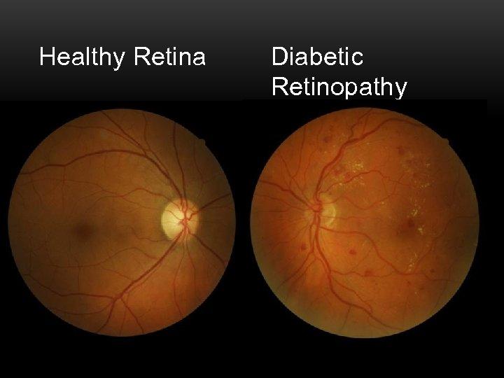 Healthy Retina Diabetic Retinopathy