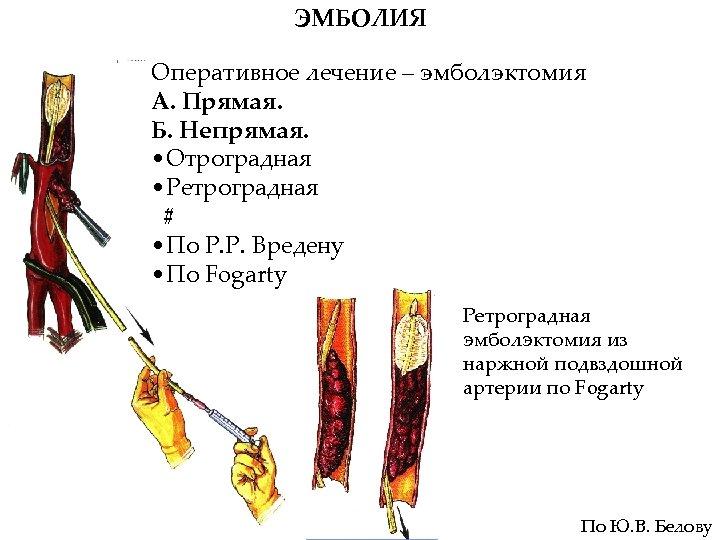ЭМБОЛИЯ Оперативное лечение – эмболэктомия А. Прямая. Б. Непрямая. • Отроградная • Ретроградная #