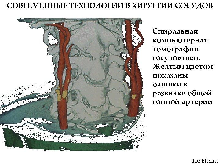 СОВРЕМЕННЫЕ ТЕХНОЛОГИИ В ХИРУРГИИ СОСУДОВ Спиральная компьютерная томография сосудов шеи. Желтым цветом показаны бляшки