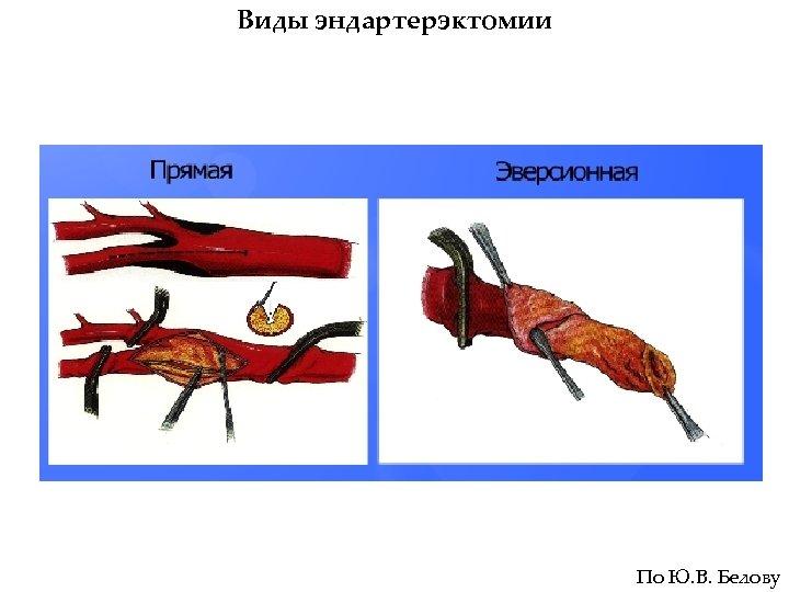Виды эндартерэктомии По Ю. В. Белову