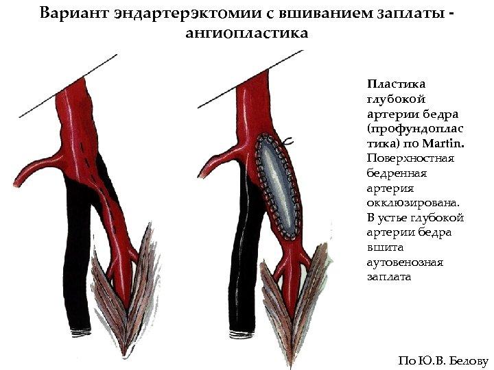 Вариант эндартерэктомии с вшиванием заплаты ангиопластика Пластика глубокой артерии бедра (профундоплас тика) по Martin.