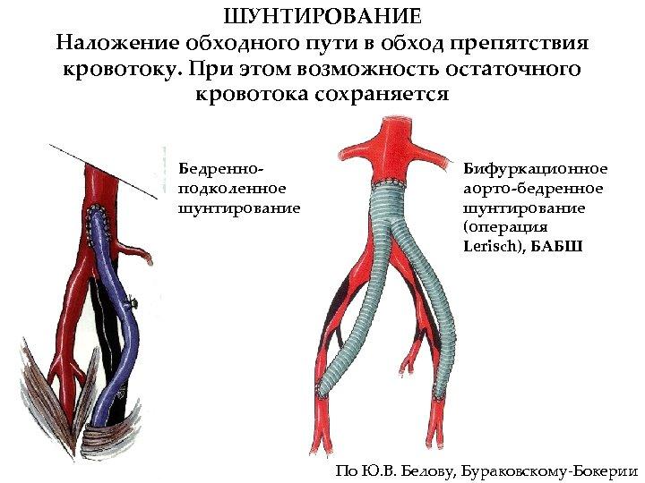 ШУНТИРОВАНИЕ Наложение обходного пути в обход препятствия кровотоку. При этом возможность остаточного кровотока сохраняется