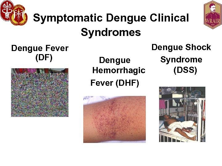 Symptomatic Dengue Clinical Syndromes Dengue Fever (DF) Dengue Shock Syndrome Dengue (DSS) Hemorrhagic Fever