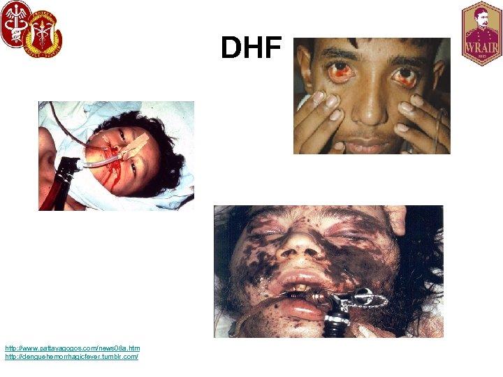 DHF http: //www. pattayagogos. com/news 08 a. htm http: //denguehemorrhagicfever. tumblr. com/