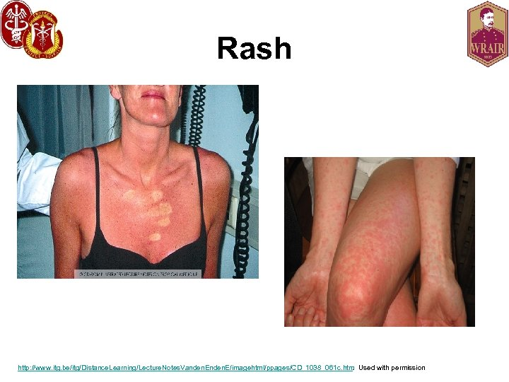 Rash http: //www. itg. be/itg/Distance. Learning/Lecture. Notes. Vanden. E/imagehtml/ppages/CD_1038_061 c. htm. Used with permission