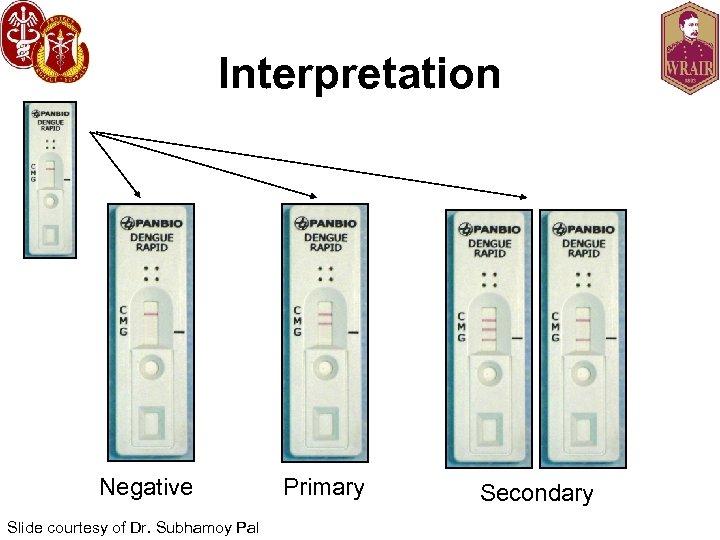 Interpretation Negative Slide courtesy of Dr. Subhamoy Pal Primary Secondary