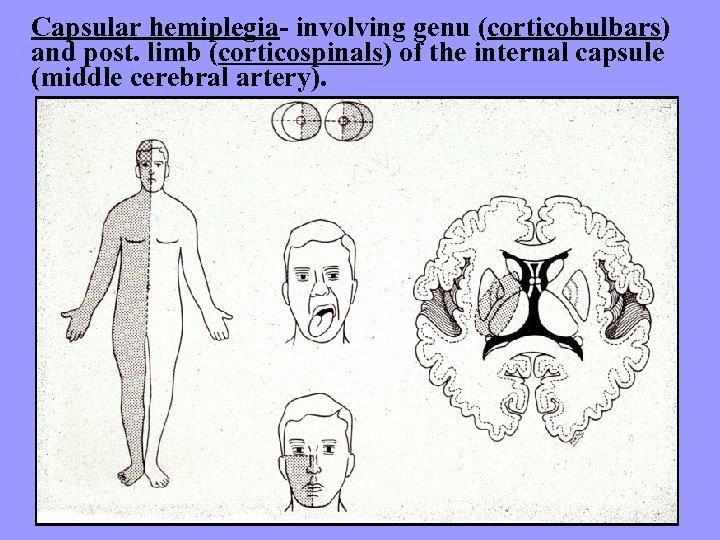 Capsular hemiplegia- involving genu (corticobulbars) and post. limb (corticospinals) of the internal capsule (middle