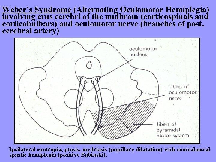 Weber's Syndrome (Alternating Oculomotor Hemiplegia) involving crus cerebri of the midbrain (corticospinals and corticobulbars)