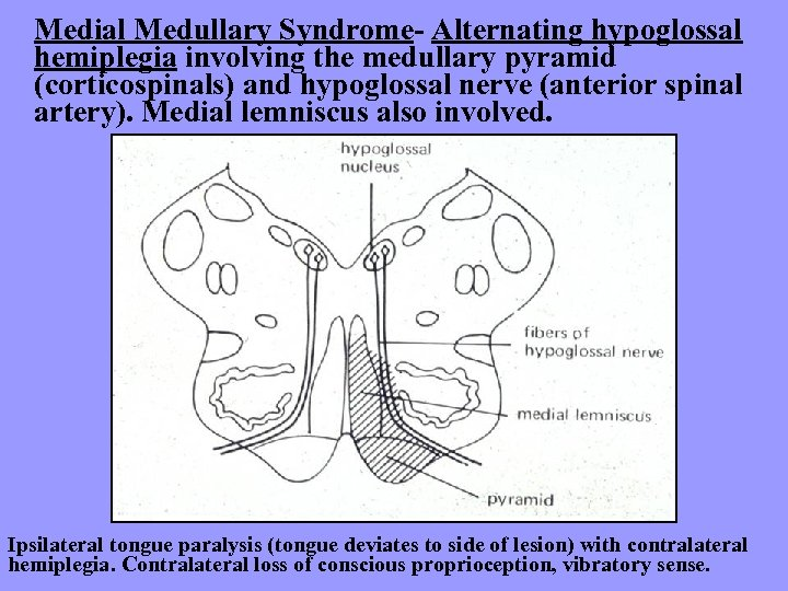 Medial Medullary Syndrome- Alternating hypoglossal hemiplegia involving the medullary pyramid (corticospinals) and hypoglossal nerve