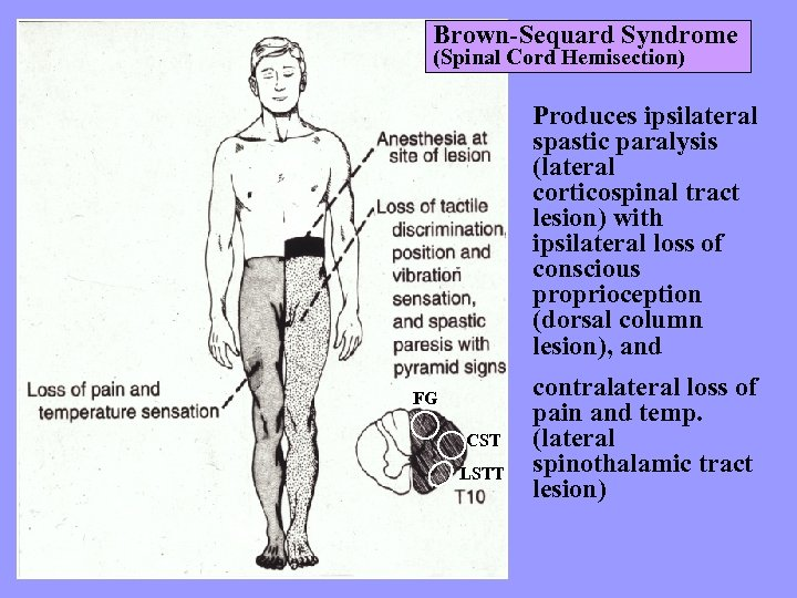Brown-Sequard Syndrome (Spinal Cord Hemisection) Produces ipsilateral spastic paralysis (lateral corticospinal tract lesion) with