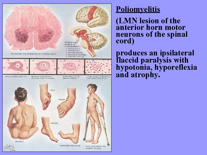 Poliomyelitis (LMN lesion of the anterior horn motor neurons of the spinal cord) produces