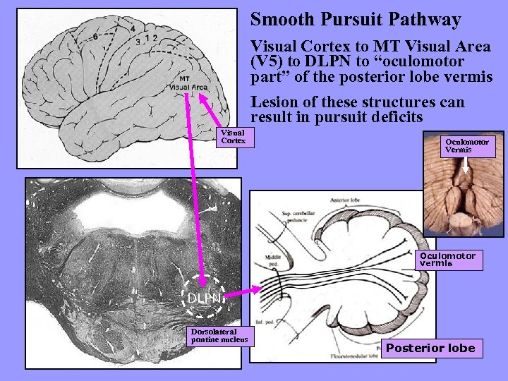 Smooth Pursuit Pathway Visual Cortex to MT Visual Area (V 5) to DLPN to